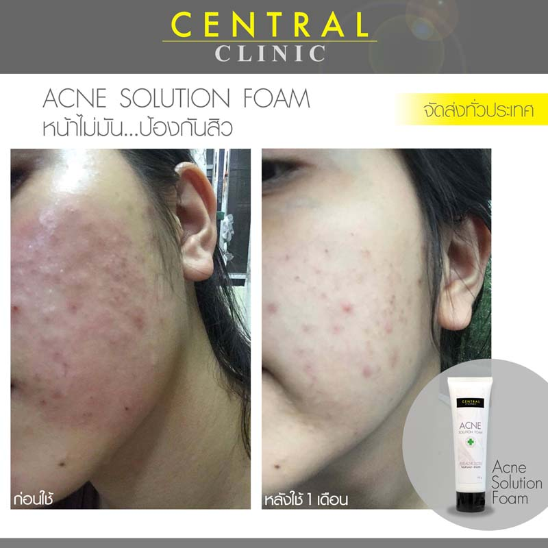 before after acne foam laos