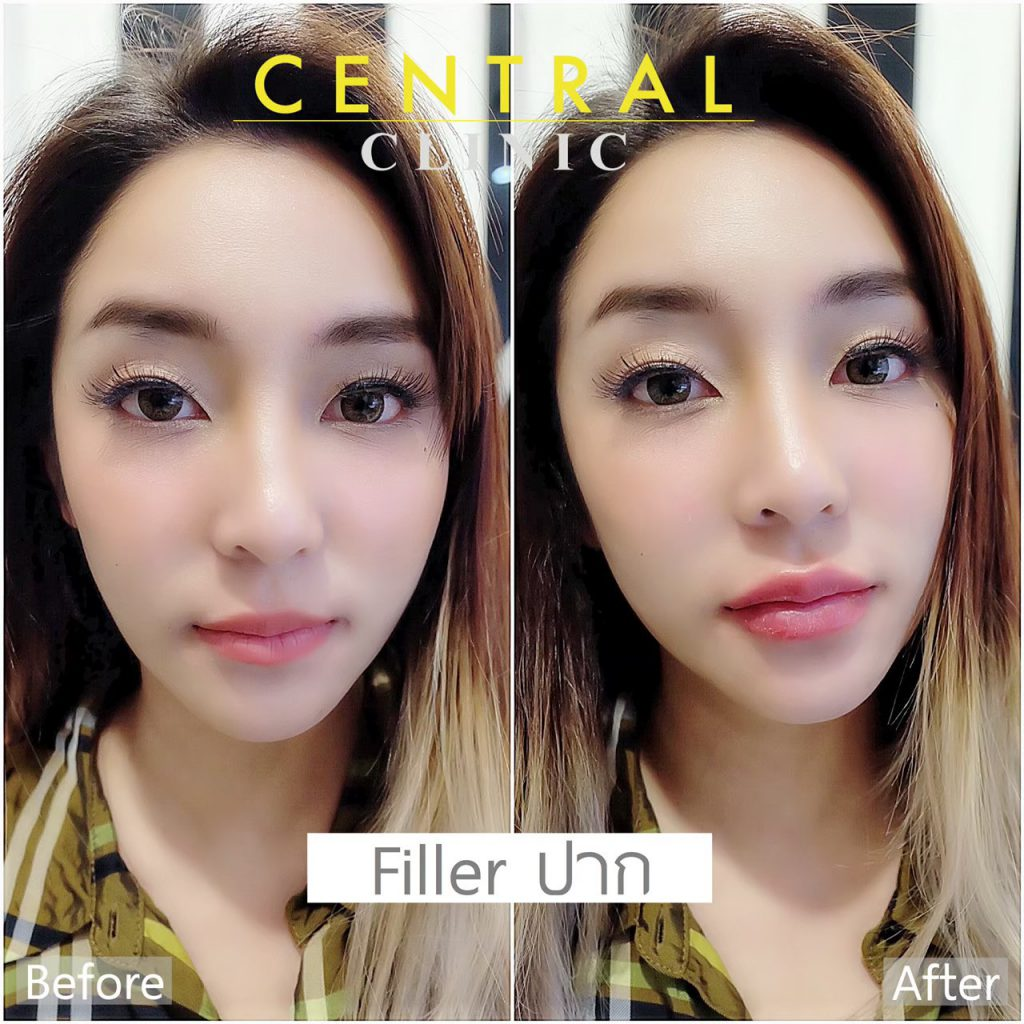 before after_๒๑๐๔๒๒_11