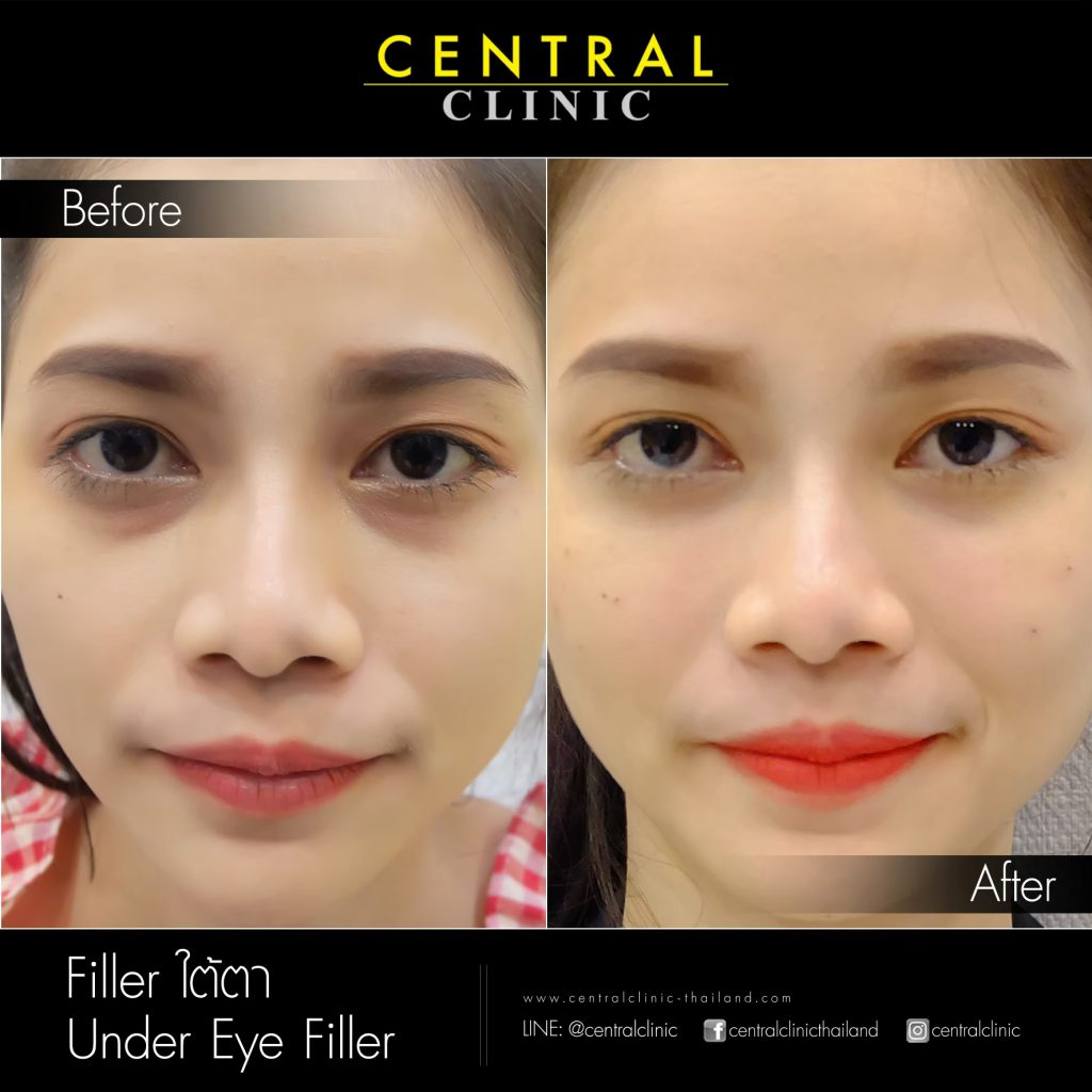 before after_๒๑๐๔๒๒_32